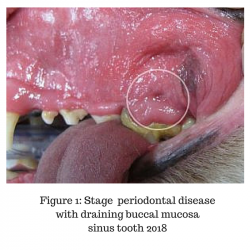 Figure 1 Stage Periodontal Disease With Draining Buccal Mucosa Sinus Tooth 2018